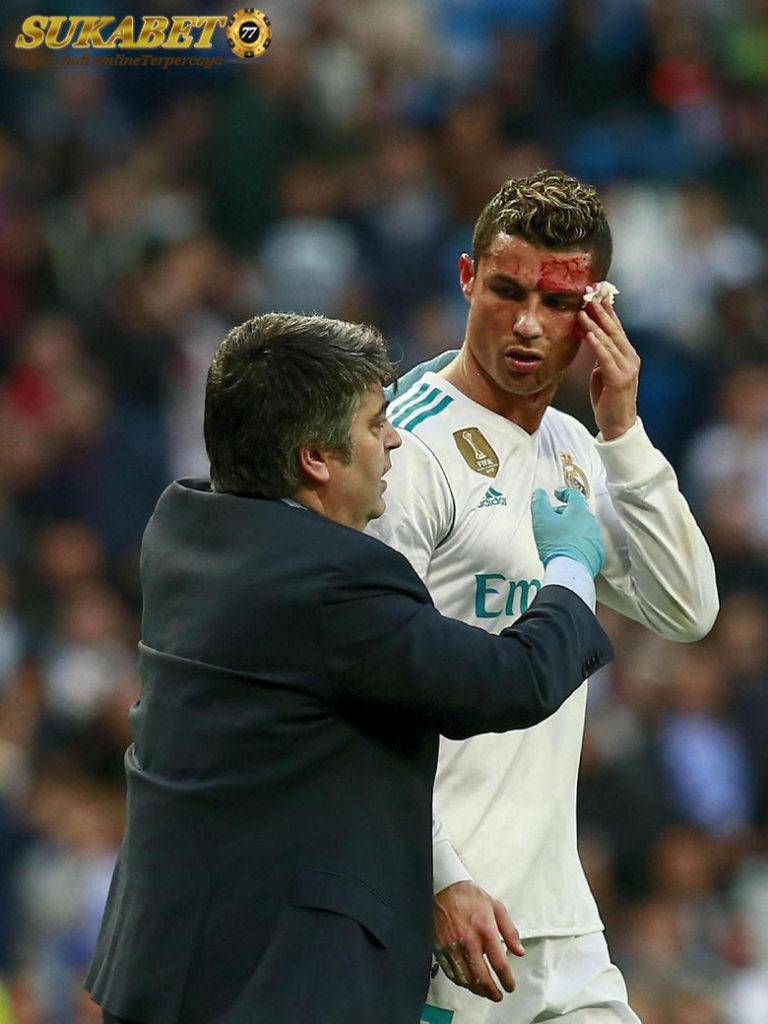 Pelepis Mata Robek, Wajah Ronaldo Berdarah-darah